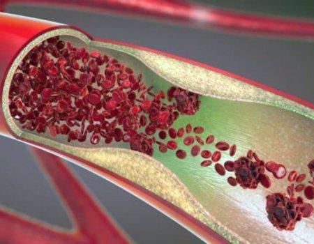 гидрогель, способный остановить артериальное кровотечение